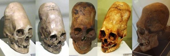 Paracas Skulls Ica Museum inca